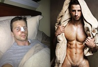 Simon Dexter Porn simon shocking before after pics gay porn star turned male escort dexters nose